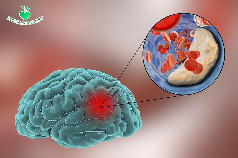 Xơ vữa mạch máu não – Thủ phạm gây đột quỵ não với di chứng nặng nề